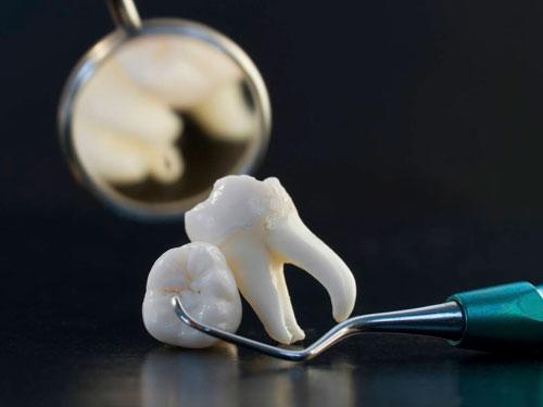 Удаление зуба Уфа цены