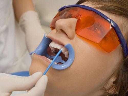 Отбелить зубы СПб