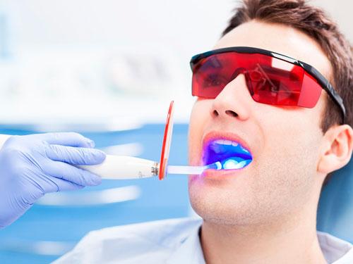 Отбеливание зубов ультрафиолетом