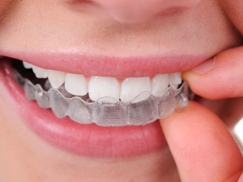 Отбеливание зубов Краснодар цена