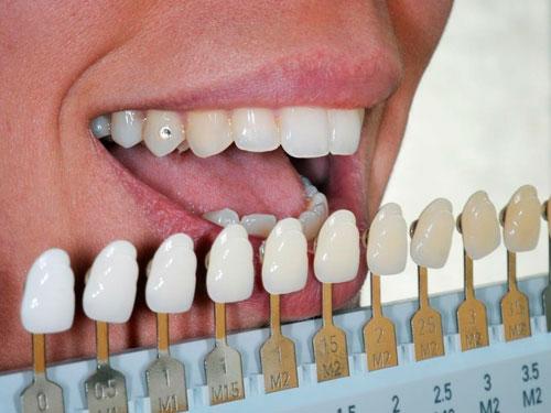 Отбеливание зубов в Нижнем Новгороде стоимость