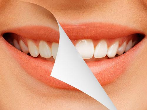 Современное протезирование зубов новые технологии и цены