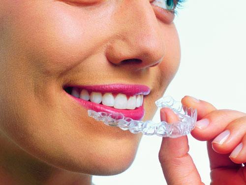 Отбеливание зубов Балашиха