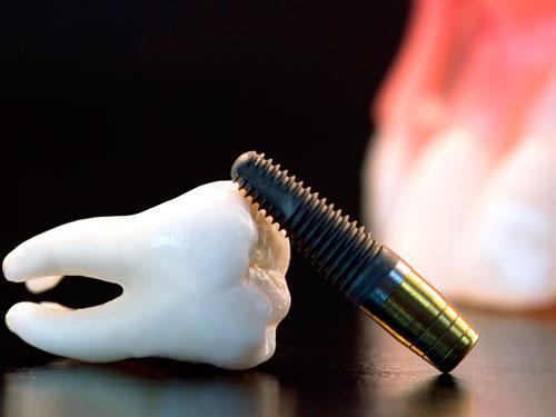 Поставить имплантант зуба цена
