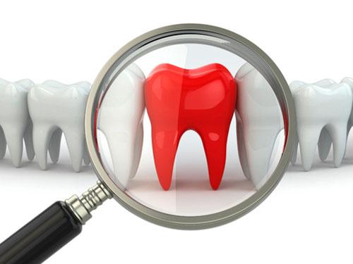 Базальная имплантация зубов в СПБ цены