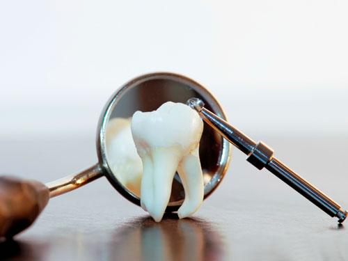 Удаление дистопированного зуба мудрости