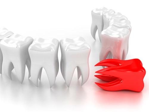 Сколько стоит один имплантант зуба с установкой