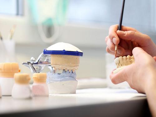 Имплантация зубов в Самаре цены