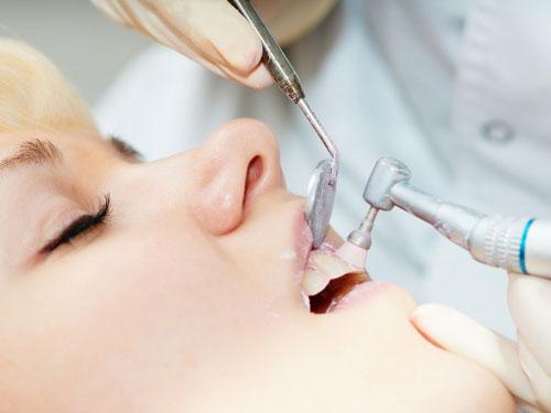 Профессиональная чистка зубов спб