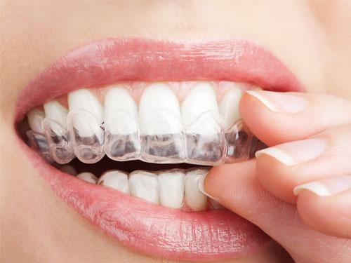 Выравнивание зубов с помощью капп цена