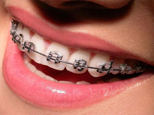 Сколько стоит выравнивание зубов