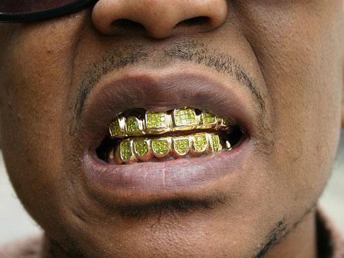 Золотые вставки на зубы