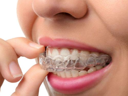 Поставить скобы на зубы цена