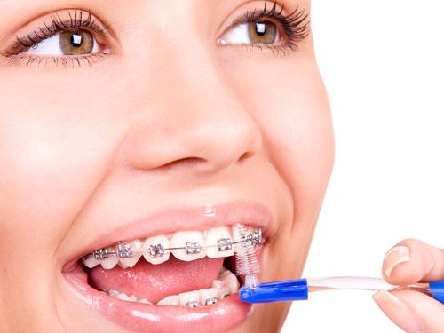 Сколько стоит поставить скобы на зубы