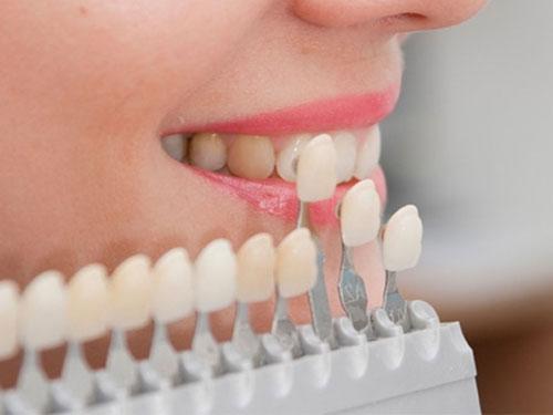 Чистка зубов ультразвуком цены в СПБ
