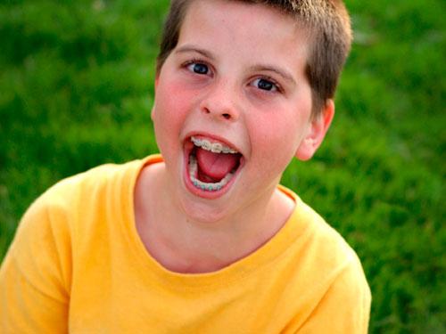 Сколько стоит поставить брекеты ребенку 12 лет