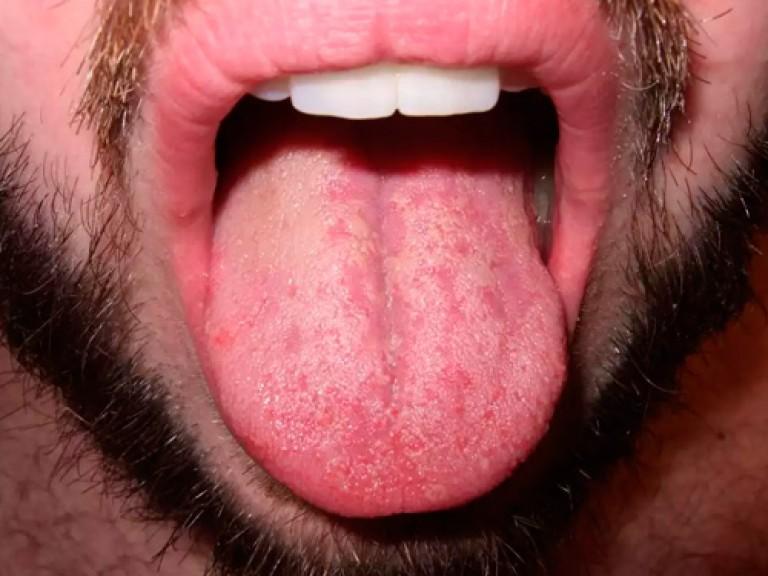 задачи лечение болячки и жжение на языке занятий спортом