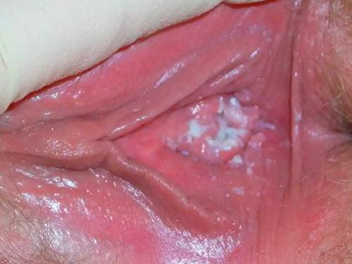 Как проявляется молочница у женщин симптомы