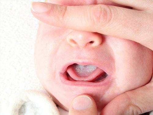 Как выглядит молочница у новорожденных во рту
