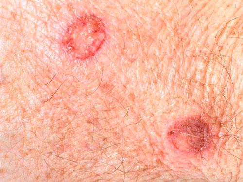 Проявление сифилиса у женщин