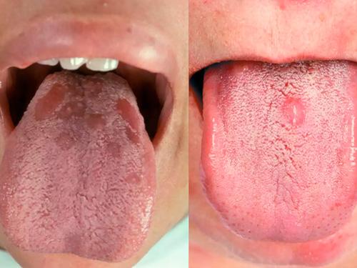 Сифилис во рту фото