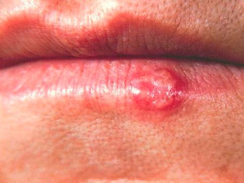 Цитомегаловирусная инфекция симптомы у мужчин
