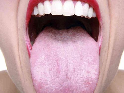 Молочница на языке у взрослых