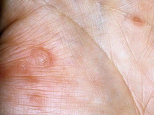 Бытовой сифилис фото