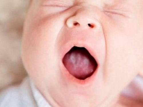 Как выглядит молочница во рту у грудничка