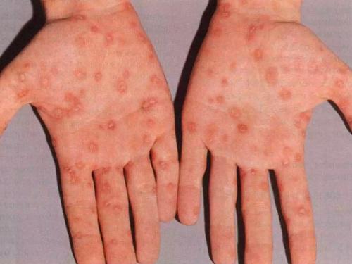 Сыпь при сифилисе фото